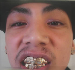 How Much Do Gold Teeth Cost Buy Gold Info